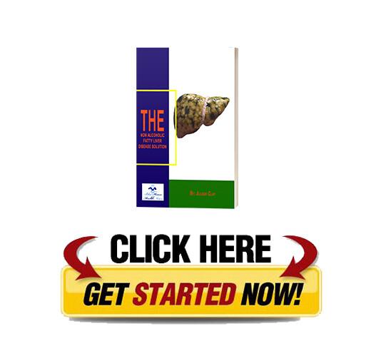 Download Non Alcoholic Fatty Liver Strategy PDF